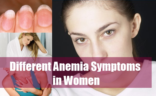Different Anemia Symptoms in Women