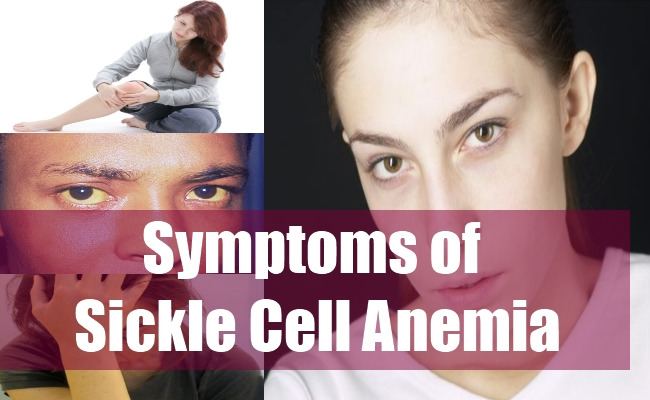 Symptoms of Sickle Cell Anemia