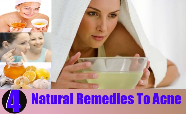Natural Remedies To Acne