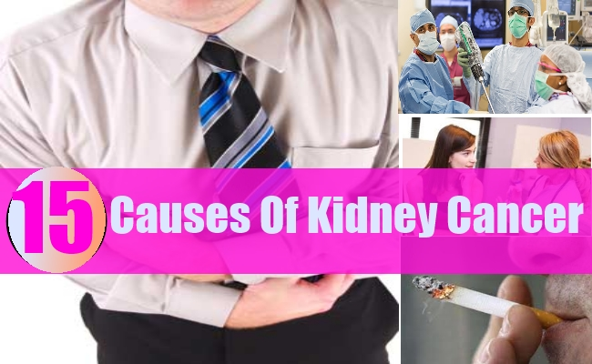 Causes Of Kidney Cancer