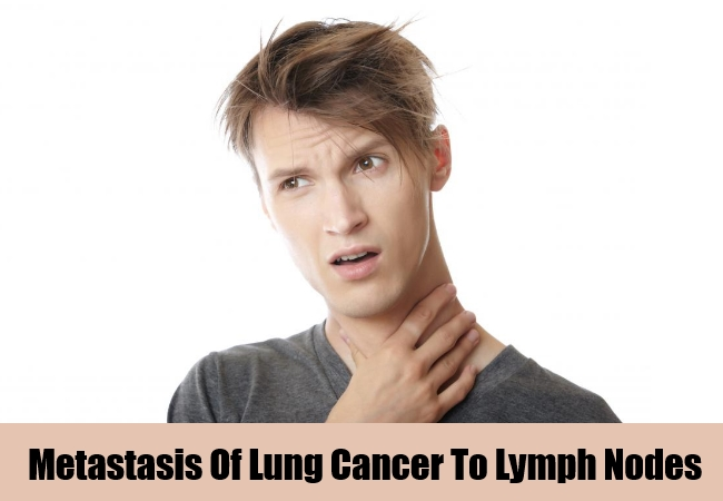 Metastasis To Lymph Nodes