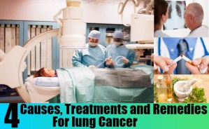 Cause,Treatment for Lung Cancer