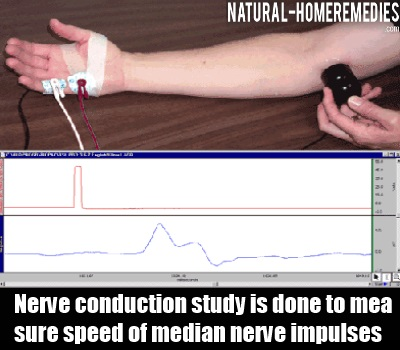 Nerve Conduction Study