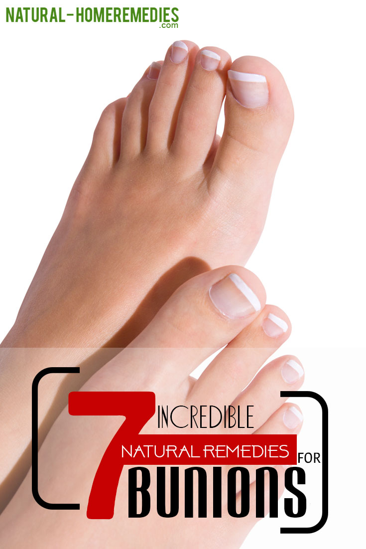 7-incredible-natural-remedies-for-bunions