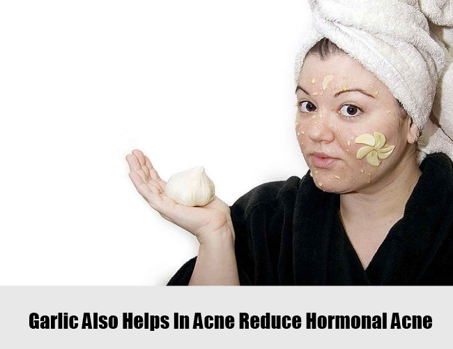 Application Of Garlic Also Helps In Acne