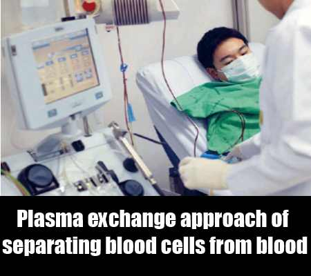 Gain Benefit Of Plasma Exchange