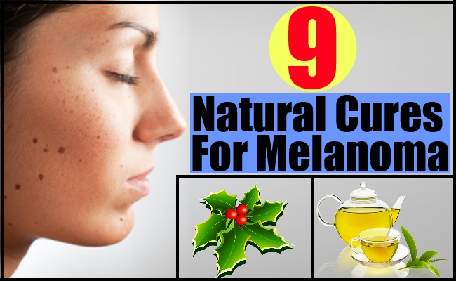 9 Natural Cures For Melanoma – Natural Home Remedies