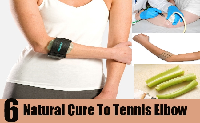 Natural Cure For Tennis Elbow