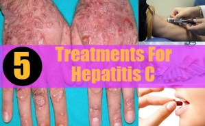 Treatments For Hepatitis C