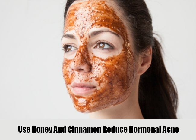 Use Honey And Cinnamon For HormonalAcne