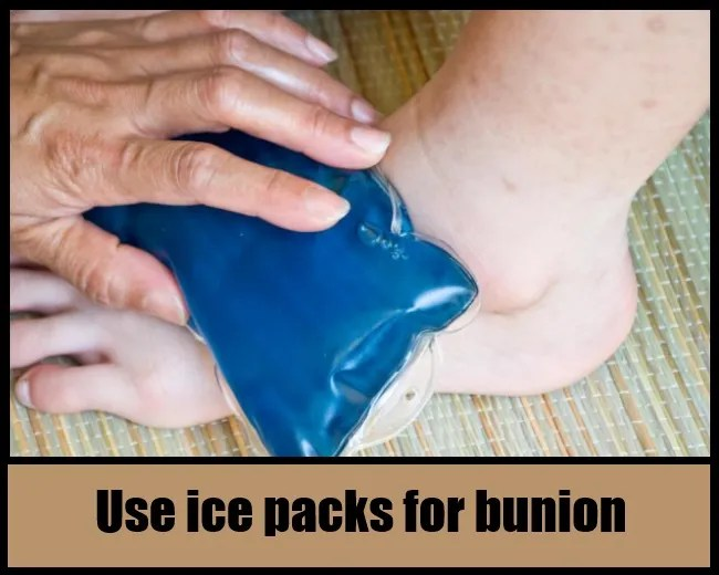 Use Ice Packs