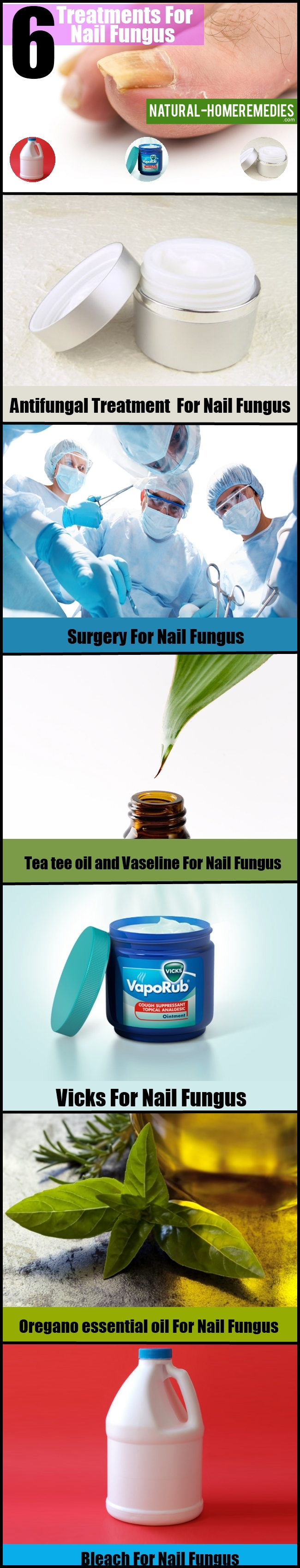 6 Treatments For Nail Fungus