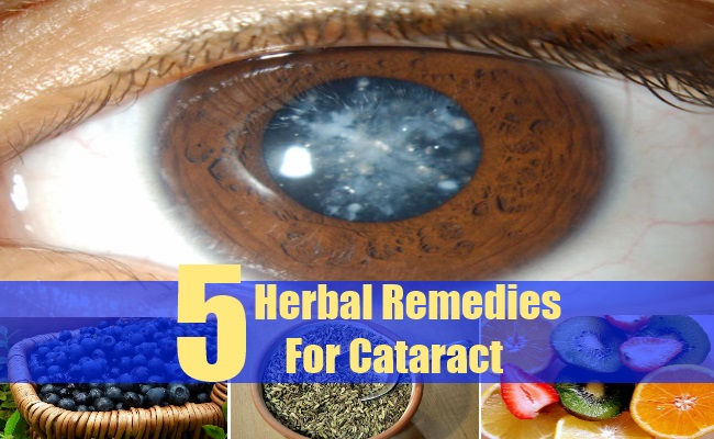 Herbal Remedies For Cataract