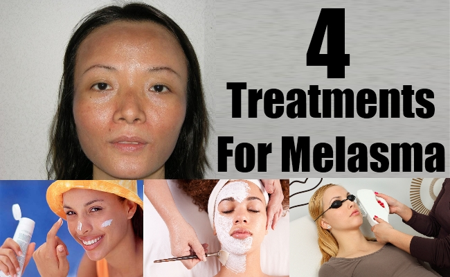 4 Treatments For Melasma - Natural Home Remedies & Supplements