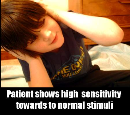 Multi-Sensory Sensitivity Syndrome In Carbon Monoxide Poisoning