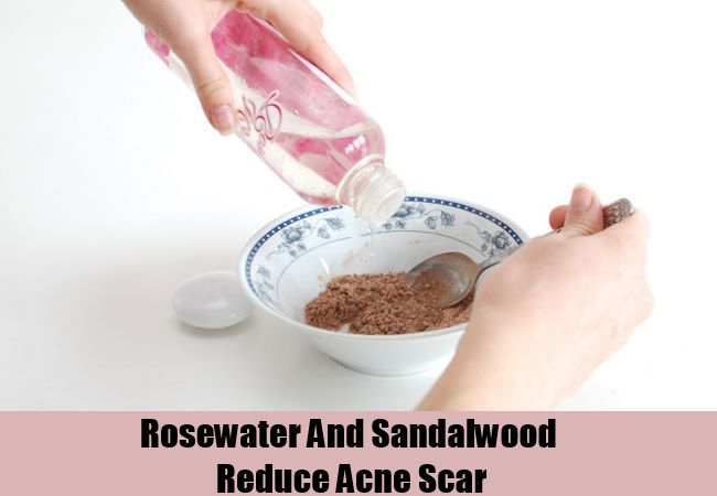 Rosewater And Sandalwood Reduce Acne Scar