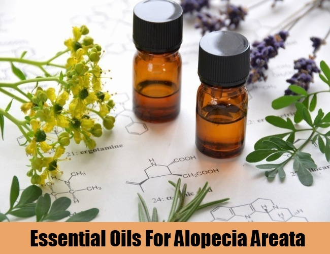 Essential Oils For Alopecia Areata