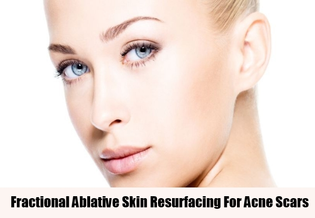 Fractional Ablative Skin Resurfacing