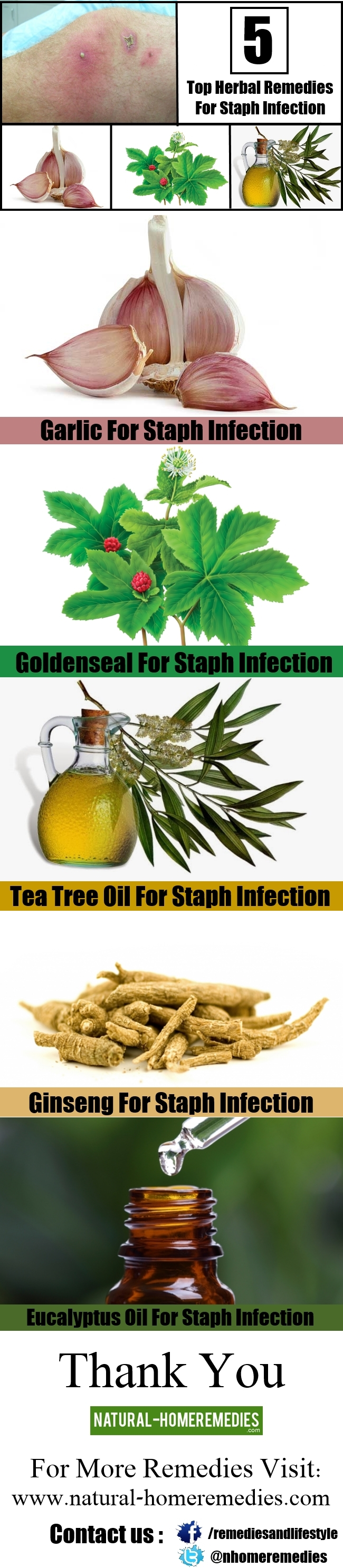 Top 5 Herbal Remedies For Staph Infection