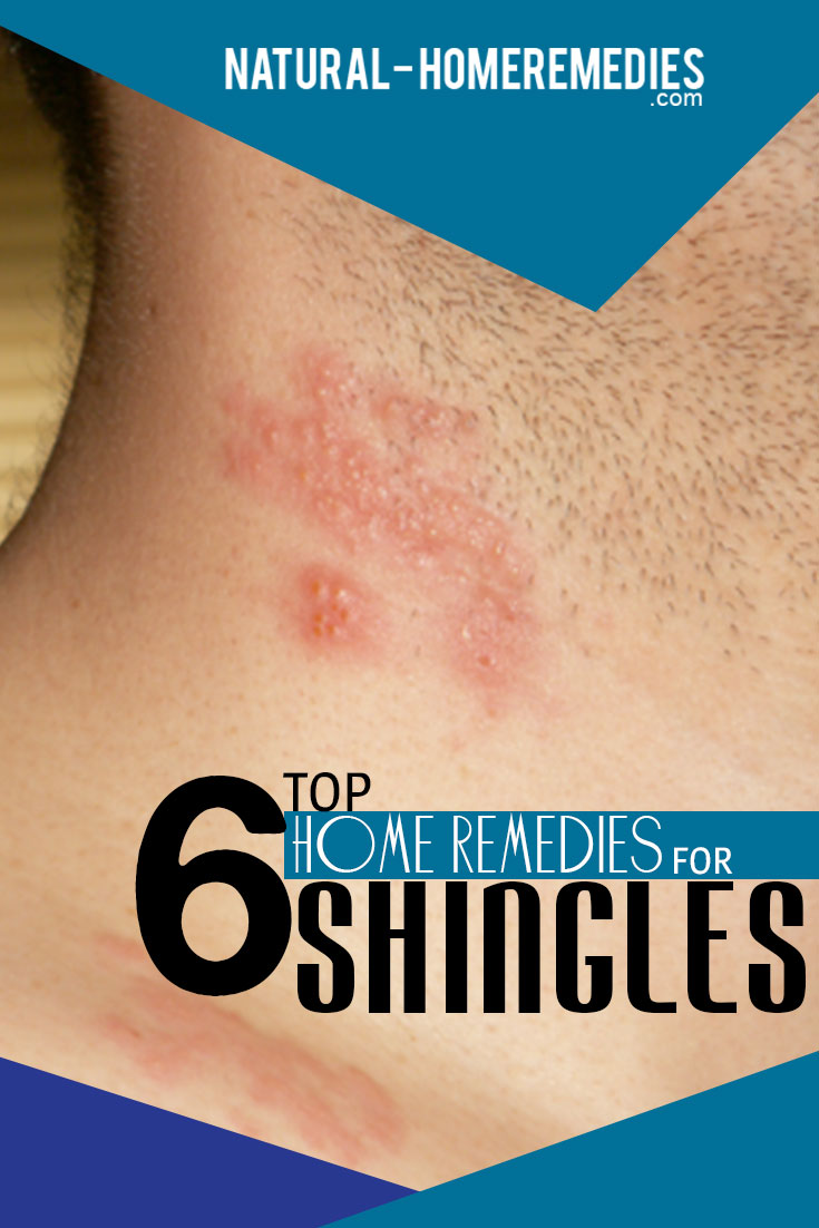 top-6-home-remedies-for-shingles
