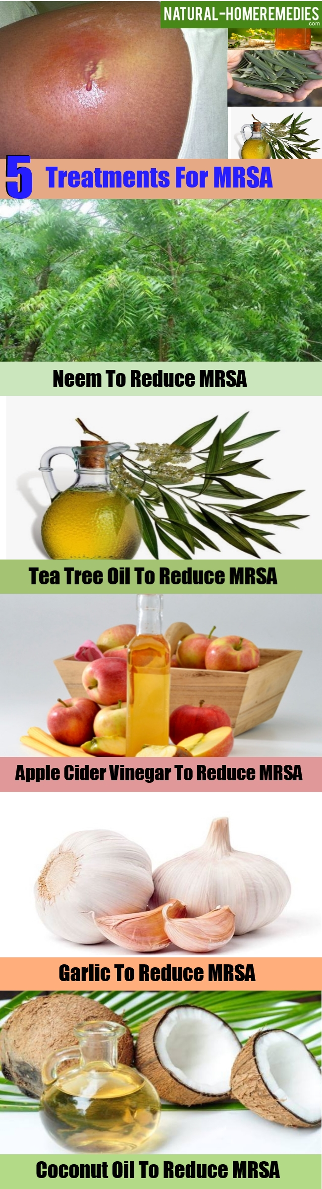 5 Effective Treatments For MRSA – Natural Home Remedies