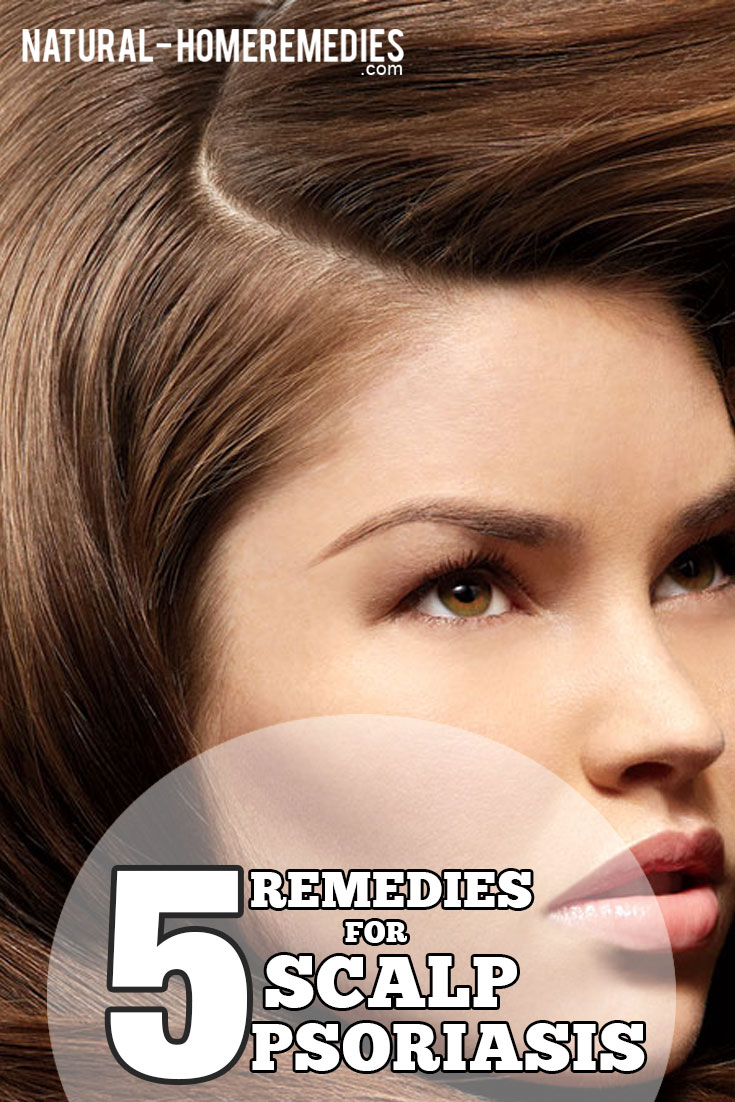 5-remedies-for-scalp-psoriasis