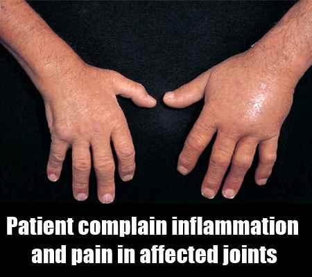 Monoarticular Gout