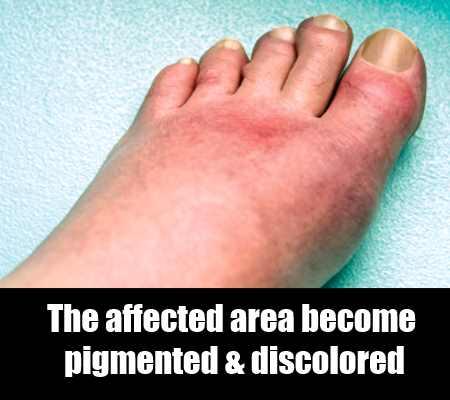 Pigmentation And Tensing Of Skin