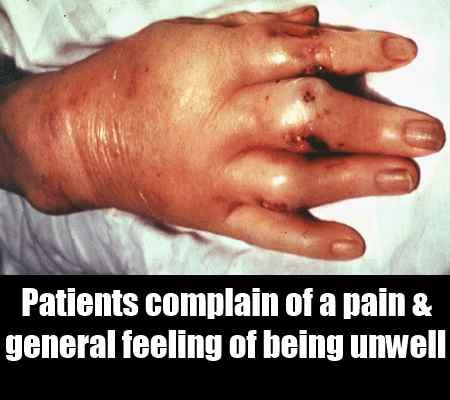 Polyarticular Gout