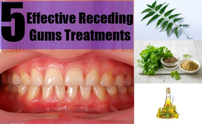 Receding Gums Treatments