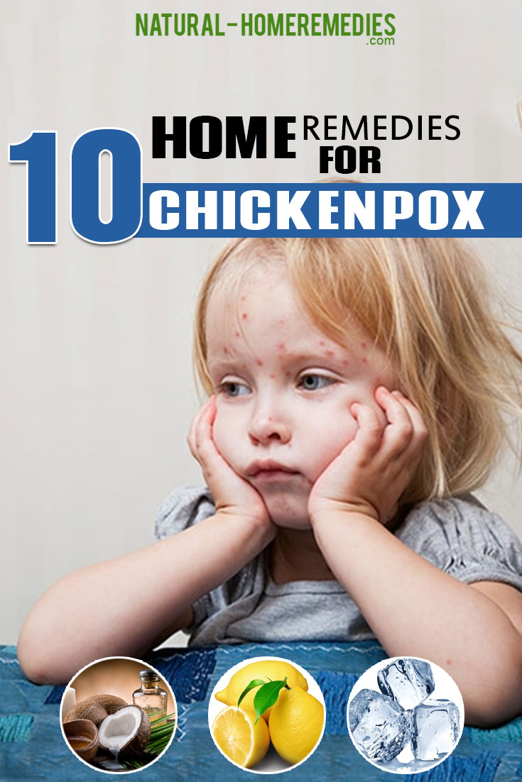 10-Home-Remedies-For-Chickenpox