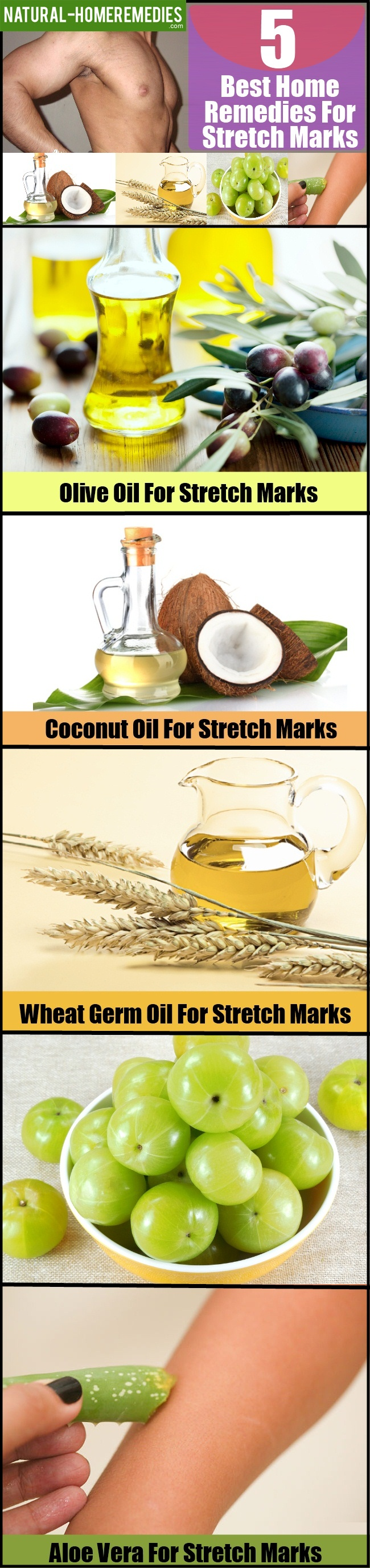 5 Best Home Remedies For Stretch Marks