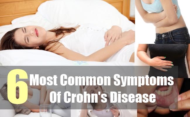 6 Most Common Symptoms Of Crohn's Disease