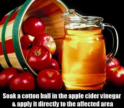 Soaking in Apple Cider Vinegar