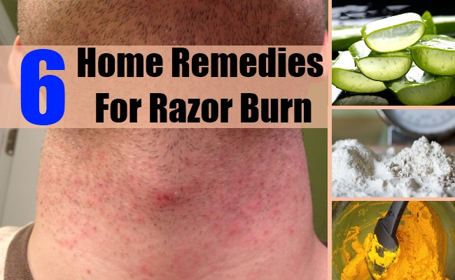 Top 6 Home Remedies For Razor Burn Natural Home Remedies