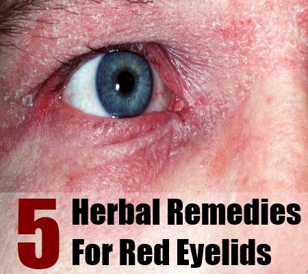 Red Eyelids