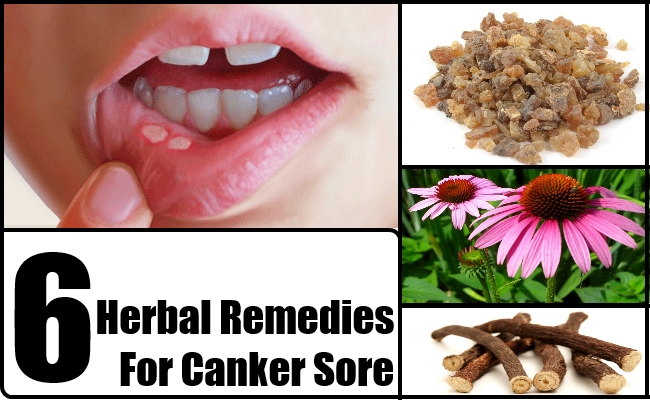 Top 6 Herbal Remedies For Canker Sore