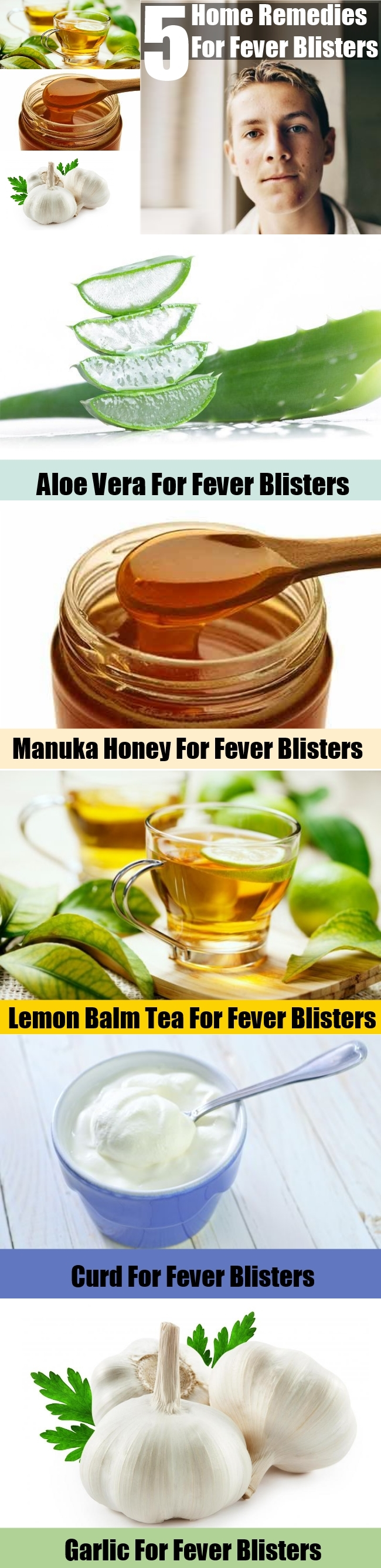 5 Home Remedies For Fever Blisters