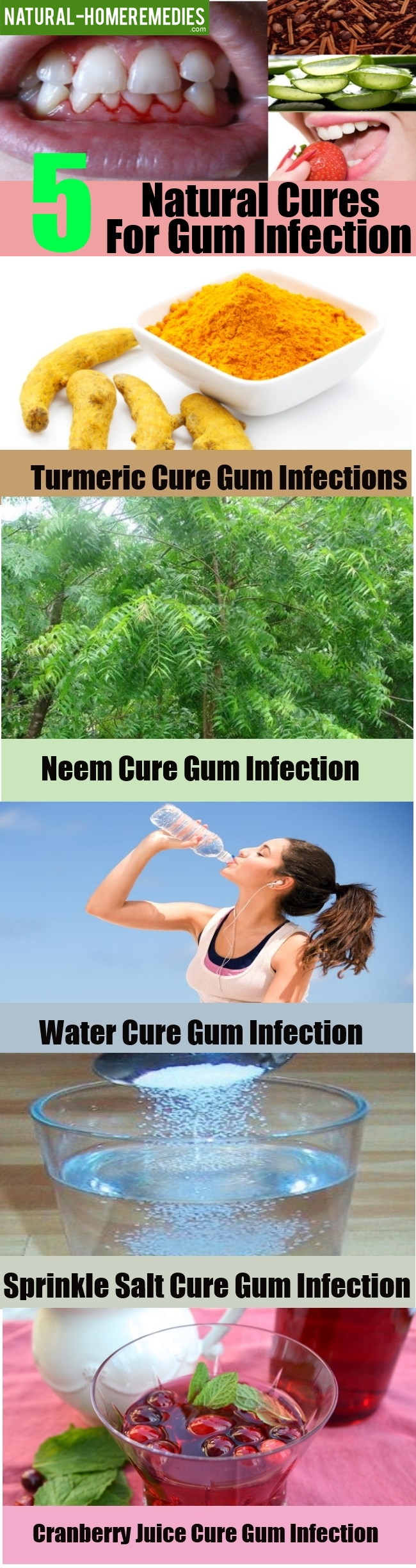 5 Natural Cures For Gum Infection