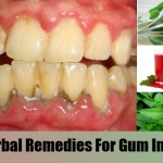 gum disease natural treatmentsgum disease natural treatments,gentile herpes picture of women,early signs of genital herpes in men tips for you