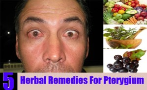 Herbal Remedies For Ptergium