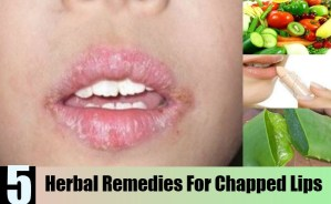 Herbal Remedies For Chapped Lips