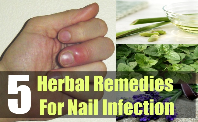 5 Herbal Remedies For Nail Infection