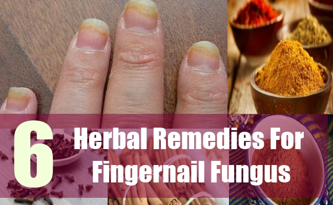 6 Herbal Remedies For Fingernail Fungus