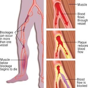 Vascular Symptoms