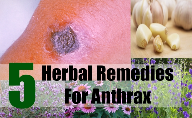 5 Herbal Remedies For Anthrax