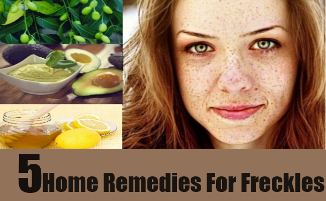 5 Home Remedies For Freckles