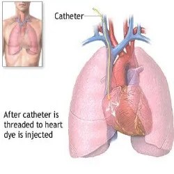 Common Cardiac Catheterization Risks