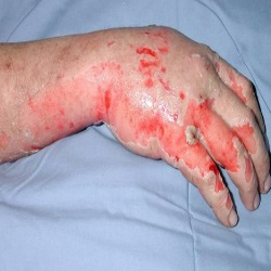 Herbal Remedies For Burnt Skin