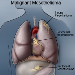 Home Remedies For Mesothelioma